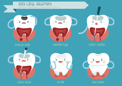 Has Your Root Canal Failed