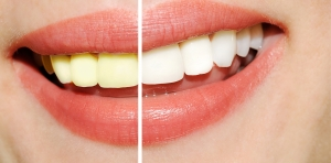 cosmetic dentistry can improve your smile.