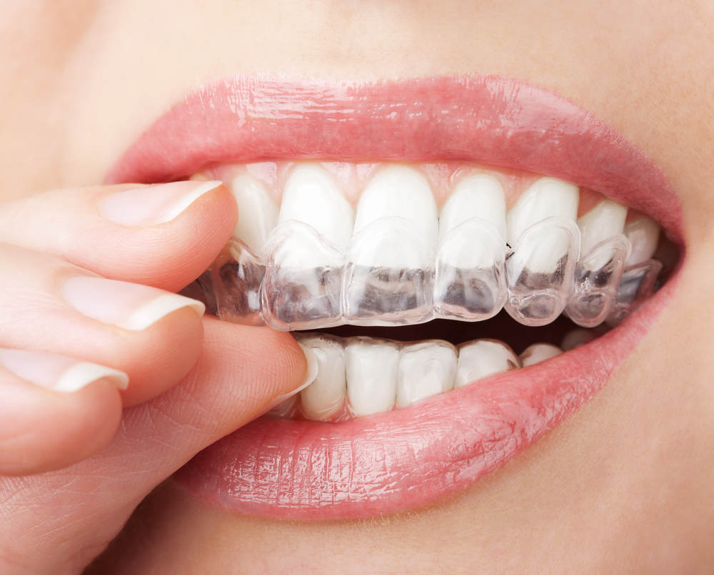 The Benefits of Invisalign® Beyond the Looks!
