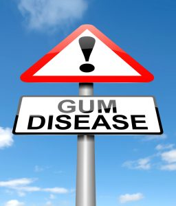Illustration depicting a sign with a Gum disease concept.