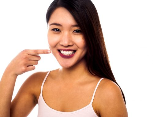 Are Porcelain Veneers Worth the Investment?