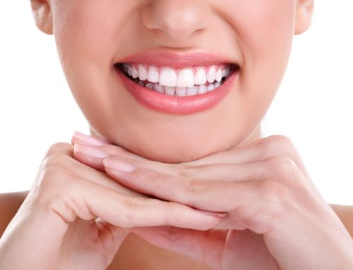 How to Maintain Your Whiter Smile After Teeth Whitening