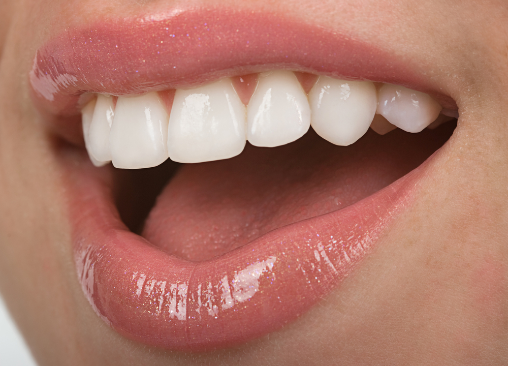 Cosmetic Bonding vs Porcelain Veneers: Which Option is Right for Me?
