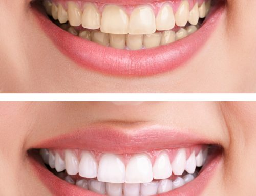 5 Dental Care Tips for a Sparkling Smile