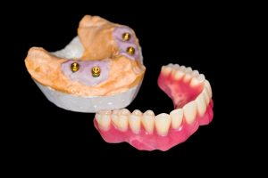 dentures supported with dental implants