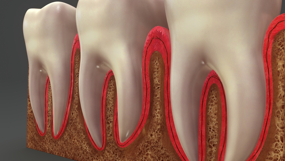 What happens if I don't get my gum disease treated?